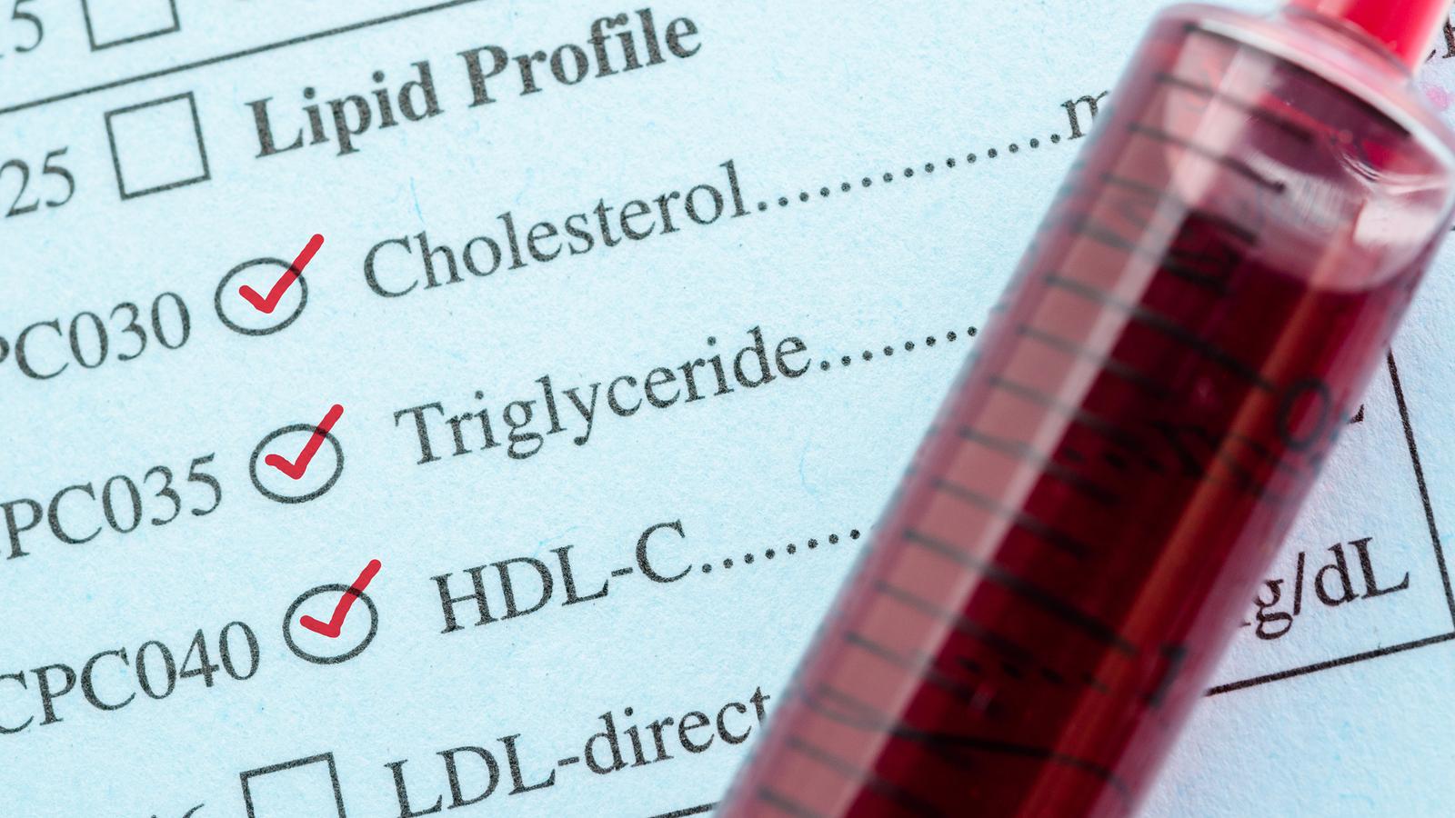 mi az étrend a magas koleszterinszint csökkentésére status