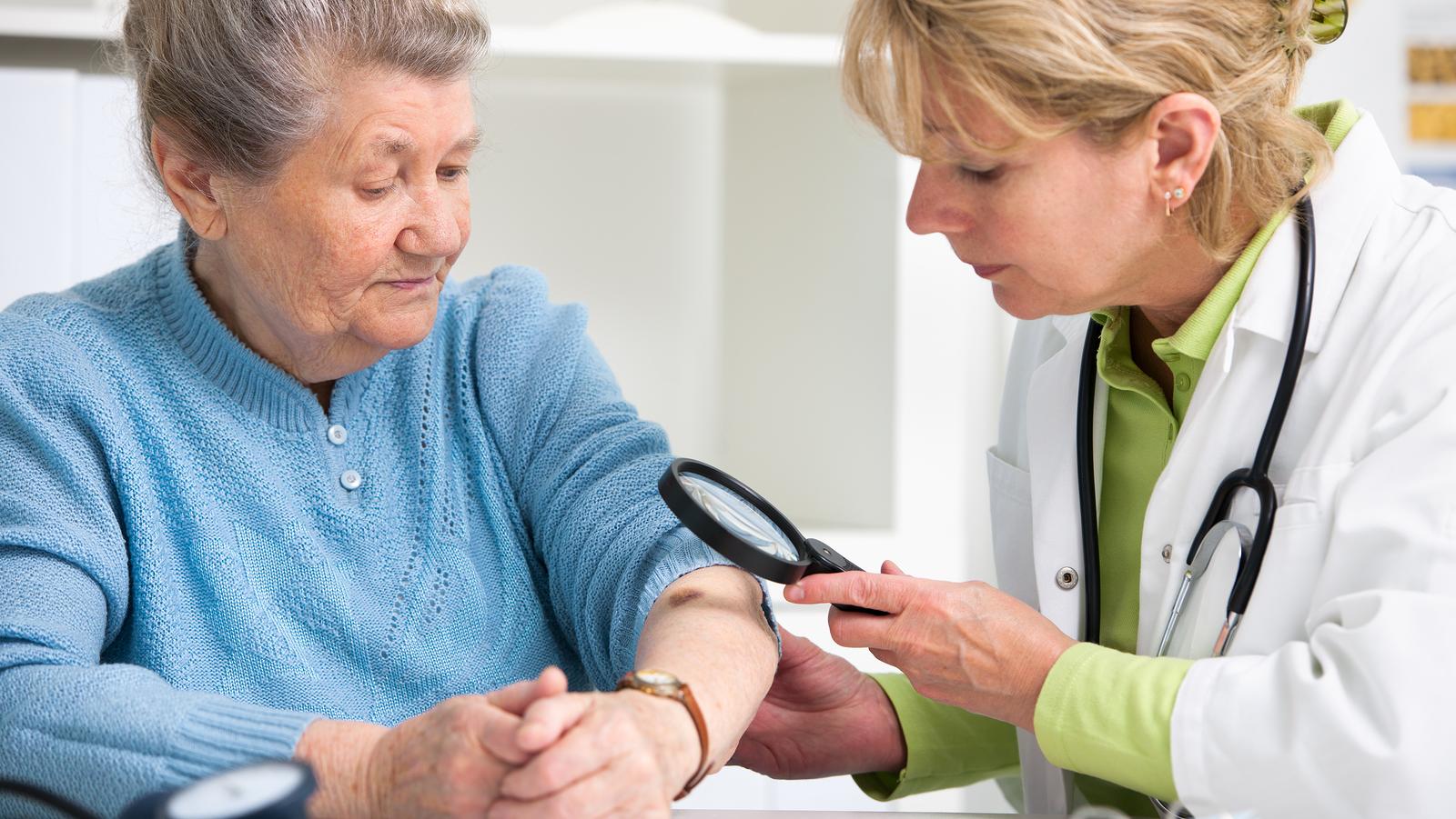 A korai stádiumú melanoma bőrrák kezelése - Orvos24