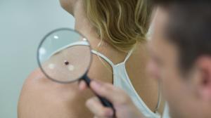 Anyajegy veszélyei | Mikor forduljunk orvoshoz?