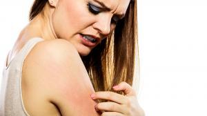 Bőrgyulladás okai | A Candida lehet a bűnös