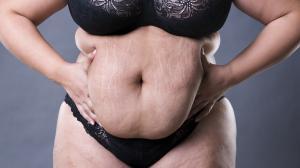 elhízás veszélyei