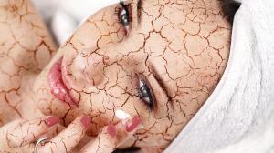 Suchá koža – Môže mať aj vnútorné príčiny