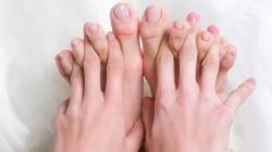 Anomalie alle unghie: è meglio verificarne le cause